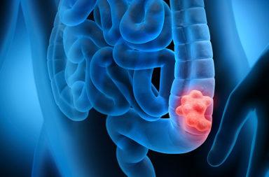 الأدوية الخافضة للضغط قد تقلل خطر الإصابة بسرطان القولون والمستقيم - ارتفاع ضغط الدم خطر الإصابة بسرطان القولون والمستقيم