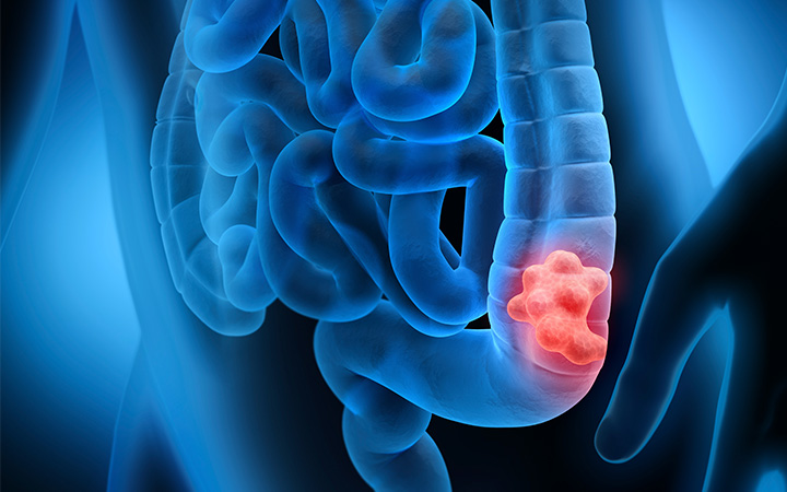 الأدوية الخافضة للضغط قد تقلل خطر الإصابة بسرطان القولون والمستقيم