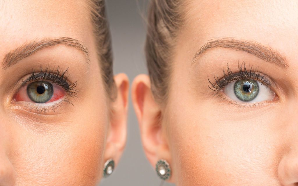 التهاب الملتحمة أو العين الوردية: الأعراض والأسباب والعلاج والتشخيص
