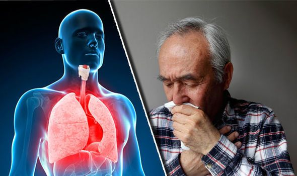 التهاب القصبات الحاد: الأسباب، الأعراض، العلاج والاستطبابات