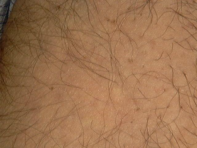 شعر العانة الأبيض: الأسباب والعلاج