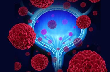 كيف يعمل الحقن داخل المثانة لعلاج سرطان المثانة؟ - متى يستخدم العلاج بالحقن داخل المثانة؟ - العلاج المناعي والعلاج الكيميائي