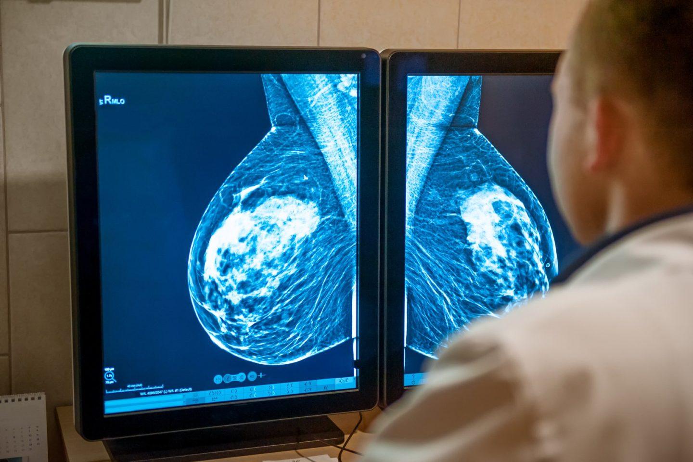 ماهي الاستقصاءات الشعاعية التي تستخدم لكشف سرطان الثدي؟
