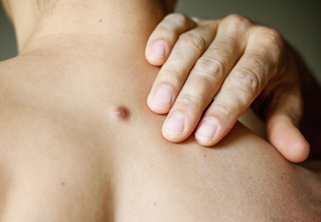 سرطان الخلايا الحرشفية الجلدي: الأسباب والأعراض والتشخيص والعلاج
