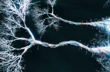 ما هو المحور العصبي ؟ ما أصل تسميته؟ كيف تنشأ حالة تنكس الأعصاب؟ لماذا يصاب بعض البشر بداء باركنسون؟ الاستطالات العصبية والمحاور