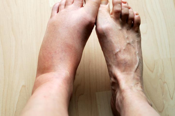 تورم الساقين: الأسباب والعلاج - احتفاظ الأنسجة أو الأوعية الدموية في الساقين بالسوائل أكثر مما ينبغي - احتباس السوائل - الالتهاب