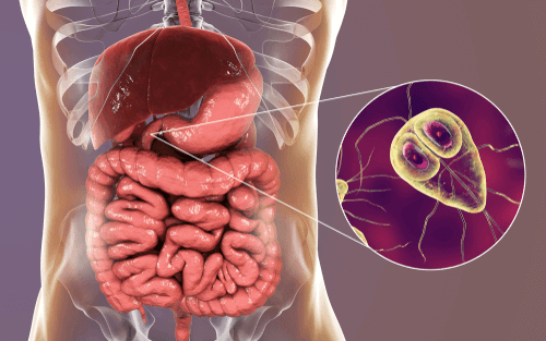 عدوى الجيارديا (الجيارديات): الأسباب والأعراض والتشخيص والعلاج - أنا أصدق  العلم