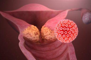 الثآليل التناسلية: الأسباب والأعراض والتشخيص والعلاج الأمراض المنقولة عبر الجنس أورام معدية لحمية المنطقة الشرجية فيروس الورم الحليمي البشري