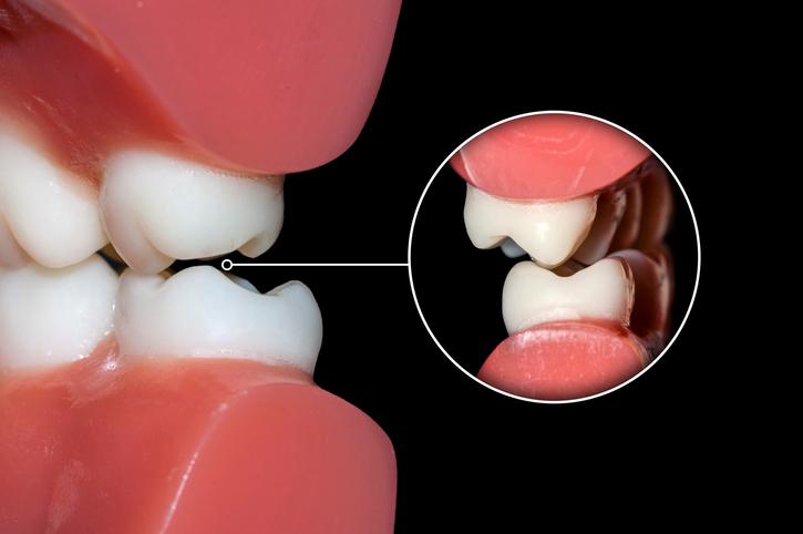 صرير الأسنان: الأسباب والعلاج - نتائج القلق والضغط النفسي - صريف الأسنان - لماذا يصر البعض بأسنانهم - العض والضغط على الأسنان