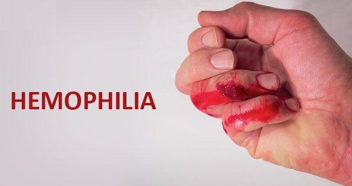 الناعور A أو الهيموفيليا A: الأسباب والأعراض والتشخيص والعلاج