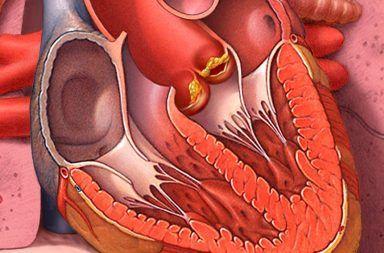 أسباب التهاب الشغاف علاج التهاب الشغاف الأسباب والأعراض والتشخيص والعلاج التهاب بطانة وعضلات وصمامات القلب البكتيريا الدم