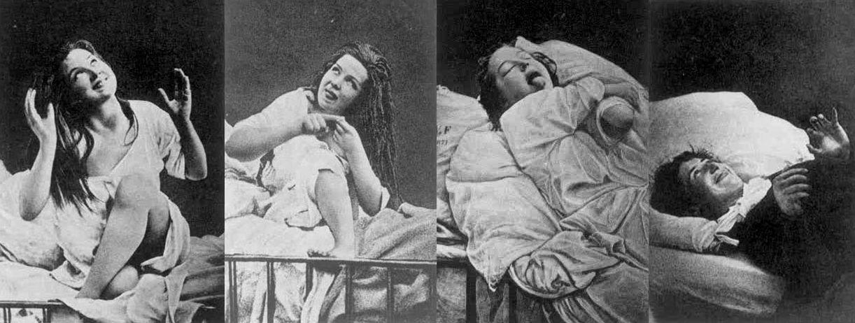 هيستيريا النساء، التاريخ وأساليب العلاج المتبعة - اضطراب ما بعد الصدمة أو الاكتئاب - الهيستيريا الأنثوية - عدم الاستقرار العاطفي