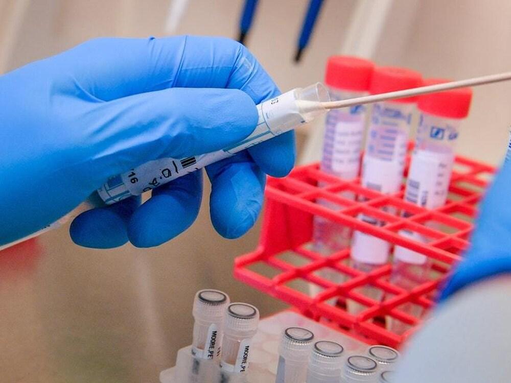 آخر الأخبار حول تطوير لقاح فيروس كورونا