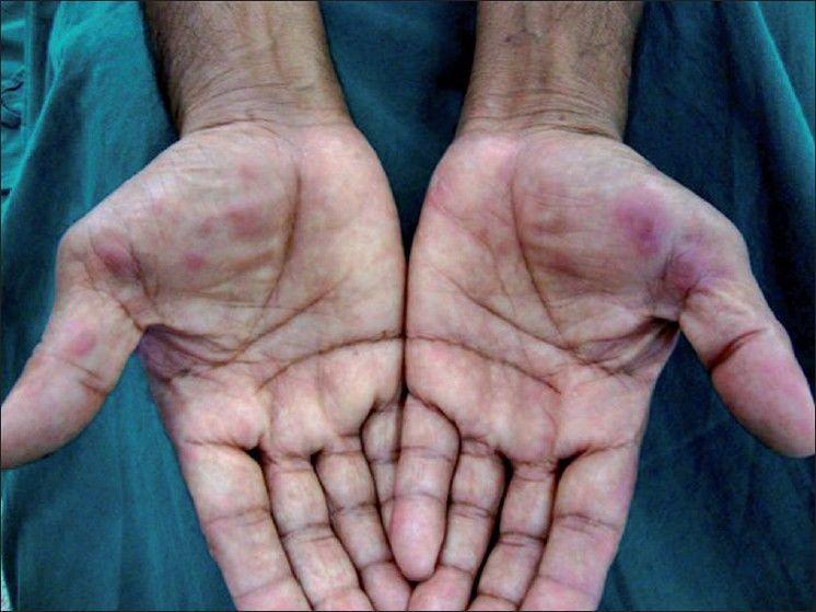 الحمامى المرتفعة الدائمة: الأسباب والاعراض والتشخيص والعلاج