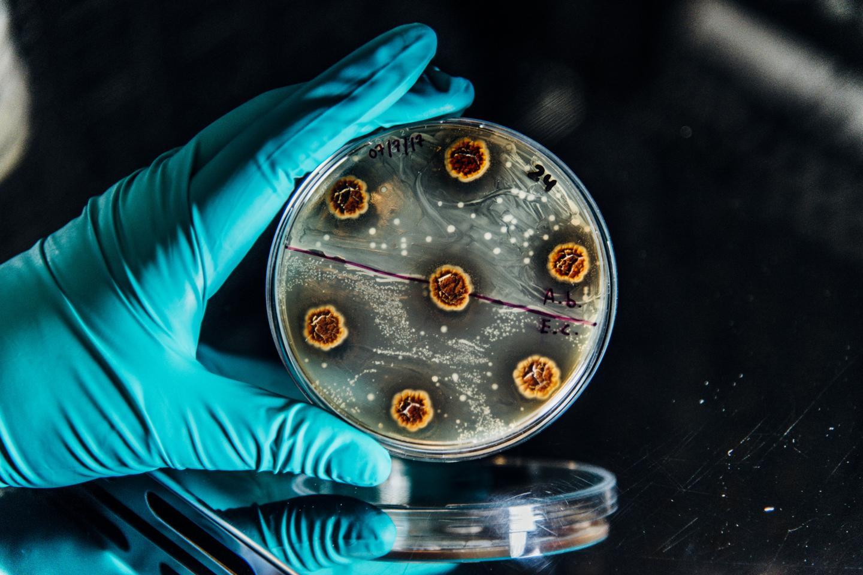 الباحثون يطورون برنامجًا لتحري الجراثيم المقاومة للمضادات الحيوية