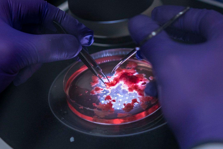 الأدمغة المزروعة في المختبر تنتج موجات مشابهة لتلك التي في أدمغة الأطفال الخدج!