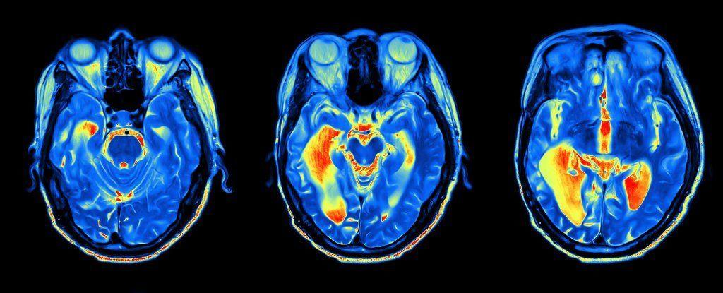 الشعور بأنك أصغر من سنك يمكن أن يكون علامةً جيدةً لصحة دماغك