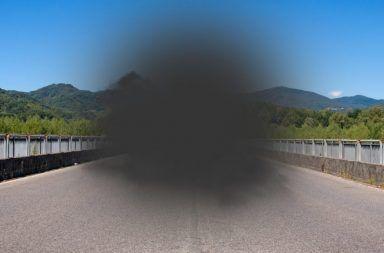 التنكس البقعي المرتبط بالسن الأأسباب والأعراض والتشخيص والعلاج Age-related macular degeneration AMD مشكلة تصيب شبكية العين