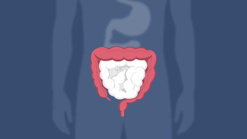 متلازمة أوغيلفي: انسداد القولون الكاذب الحاد - الأعراض والوقاية وطرق العلاج