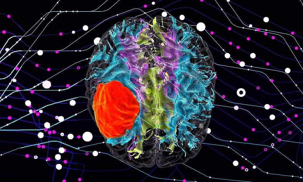 نوع جديد من الذكاء الاصطناعي يساعد في تحديد العلاج الأفضل لمرضى السرطان