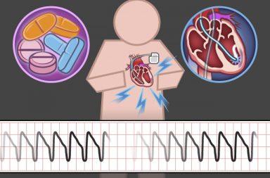 تسرع القلب البطيني: الأسباب والأعراض والتشخيص والعلاج - نظم قلبي سريع جدًا ينشأ في بطينَي القلب - تسارع دقات القلب بشكل كبير