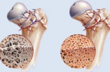 التنخر العظمي – Osteonecrosis نقص تروية دموية للعظم تسبب موت النسيج العظمي المفصل الورك الفخذ الفك العظم المفاصل الأكتاف الكاحل