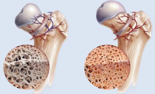 التنخر العظمي Osteonecrosis