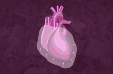 انصباب التامور: الأسباب والعلاج - وجود سوائل فائضة بين القلب والغلاف الذي يحيط به الذي يُعرف بالتامور - كمية زائدة من السوائل ضمن جوف التامور