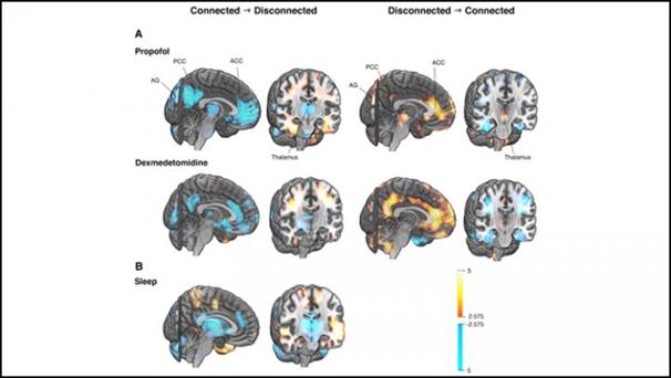 دراسة الاختلافات في نشاط الدماغ بين حالتي الوعي المتصلة والمنفصلة بالتصوير المقطعي بالإصدار البوزيتروني (PET).