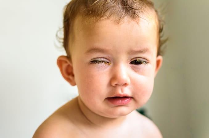 التهاب الملتحمة أسبابه وعلاجه