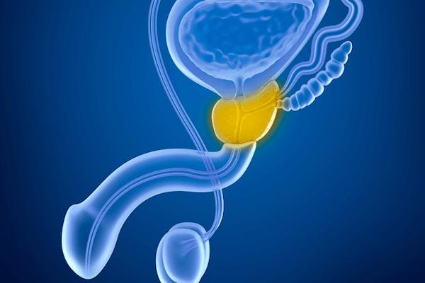 التهاب البروستات المزمن: الأسباب والأعراض والتشخيص والعلاج