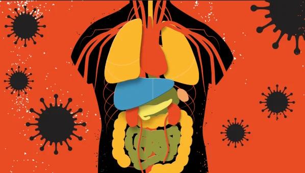 يدفع كوفيد-19 مناعة البعض لمهاجمة خلاياهم الطبيعية، ما يسبب أعراضًا شديدة - الصراع ضد كوفيد-19 - فيروس كورونا - الأجسام المضادة الذاتية