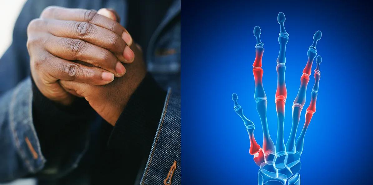 هل يمكن أن تسبب فرقعة الأصابع التهابًا في المفاصل - التهاب المفاصل - فرقعة الأصابع قد تسبب التهابًا في مفصل الإصبع - أضرار طقطقة الأصابع