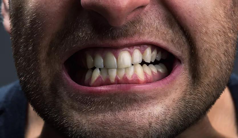 صرير الأسنان: الأسباب والعلاج