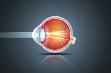 حالة تصيب العين تؤدي إلى رؤية ضبابية أو غير واضحة أو مشوشة - ما هي اللابؤرية وكيف يتم اختبار تقييم حدة الرؤية؟ من المعرضون لخطر اللا بؤرية