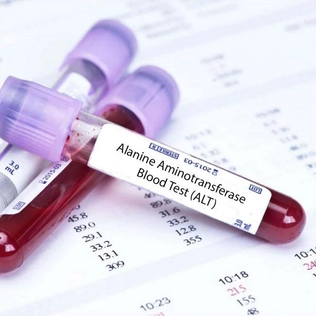 اختبار ألانين أمينو ترانسفيراز ALT