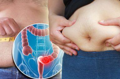 انتفاخ البطن وآلامه - يحدث انتفاخ البطن عندما يمتلئ بالهواء أو الغازات - عدم تحمل اللاكتوز - الارتجاع المعدي المريئي - التهاب المعدة والأمعاء الفيروسي