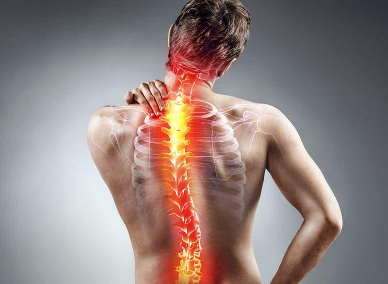 الجنف: الأسباب والأعراض والتشخيص والعلاج