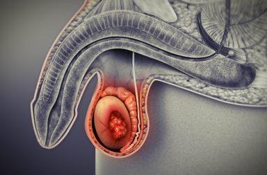 سرطان الخصية Testicular Cancer: الأسباب والأعراض والتشخيص والعلاج - كيف يتم علاج سرطان الخصيتين - سرطانات الجهاز التناسلي