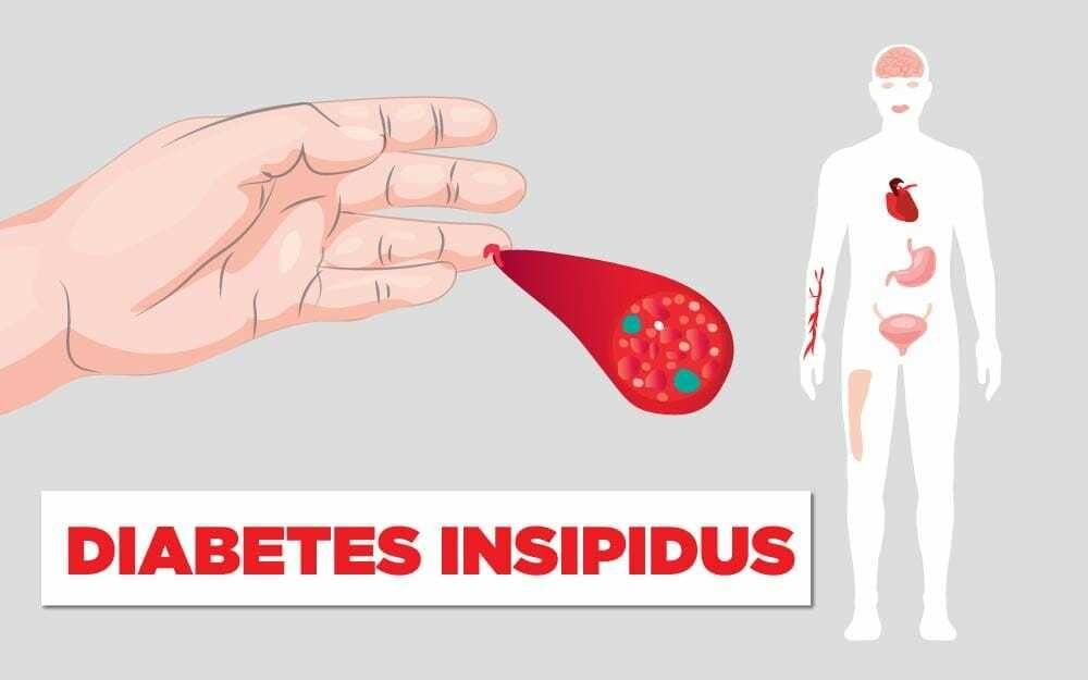 السكري الكاذب: الأسباب والأعراض والتشخيص والعلاج