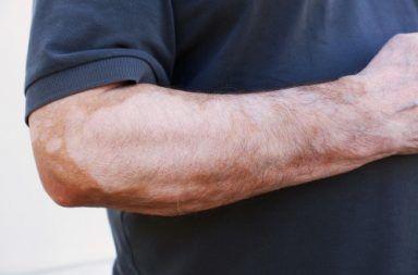 علامات وأعراض السعفة المبرقشة علاج السعفة المبرقشة أمراض الجلد الأمراض الجلدية الفطريات الخميرية طفح جلدي البشرة الدهنية التشخيص