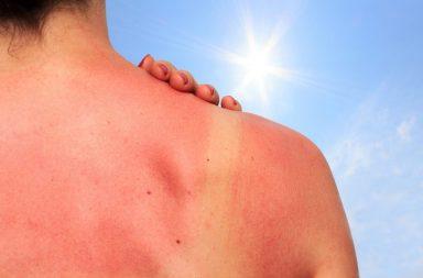 مع اقتراب فصل الصيف، كيف تقي جسمك من حروق الشمس - التعرض المفرط للأشعة فوق البنفسجية الصادرة عن الشمس - الإصابة بسرطان الجلد