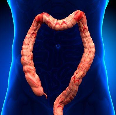 التهاب القولون التقرحي: الأسباب والأعراض والتشخيص والعلاج