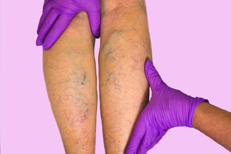القصور الوريدي: الأسباب والأعراض والتشخيص والعلاج
