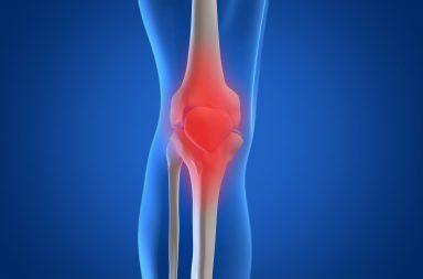 التهاب المفصل التنكسي أو الفصال العظمي الأسباب والأعراض والتشخيص والعلاج مرض المفاصل الأكثر شيوعًا تلف المفاصل التهاب المفصل