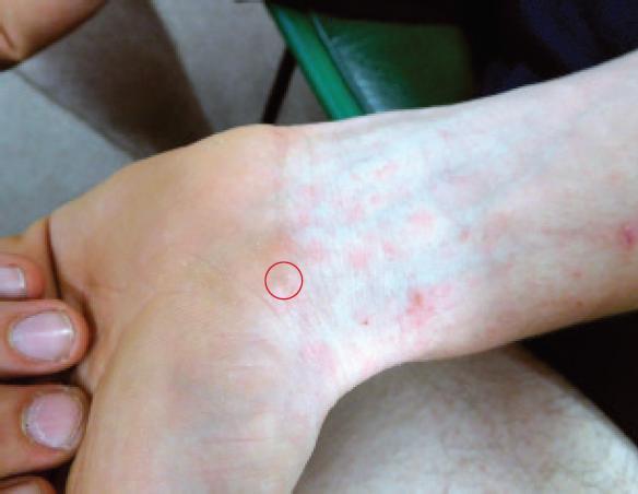 الجرب: الأسباب والأعراض والتشخيص والعلاج