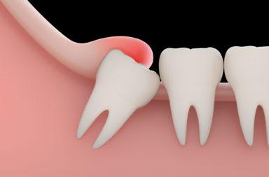 أضراس العقل: كل ما تود معرفته - التغيرات التي طرأت على العظم الفكي لدى البشر نتيجة تغير النظام الغذائي على مر السنين - أسنان الحكمة