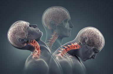 ارتجاج الدماغ: الأسباب والأعراض والتشخيص والعلاج فقدان مؤقت لوظائف الدماغ الطبيعية ضربة على الرأس إصابة في الرأس صدمة تصيب الدماغ