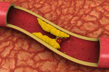 اكتشف العلماء طريقةً جديدة تضر الدهون بها شرايينك تأثير الدهون على الأوعية الدموية أضرار السمنة مخاطر تناول كميات كبيرة من الدهون