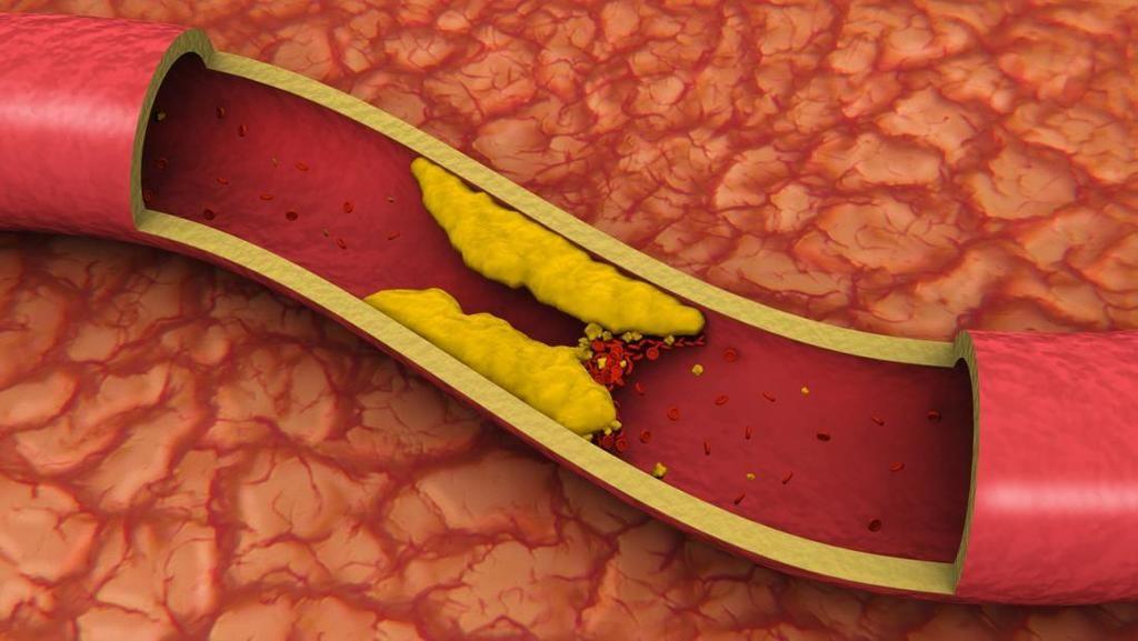 اكتشف العلماء طريقةً جديدة تضر الدهون بها الأوعية الدموية